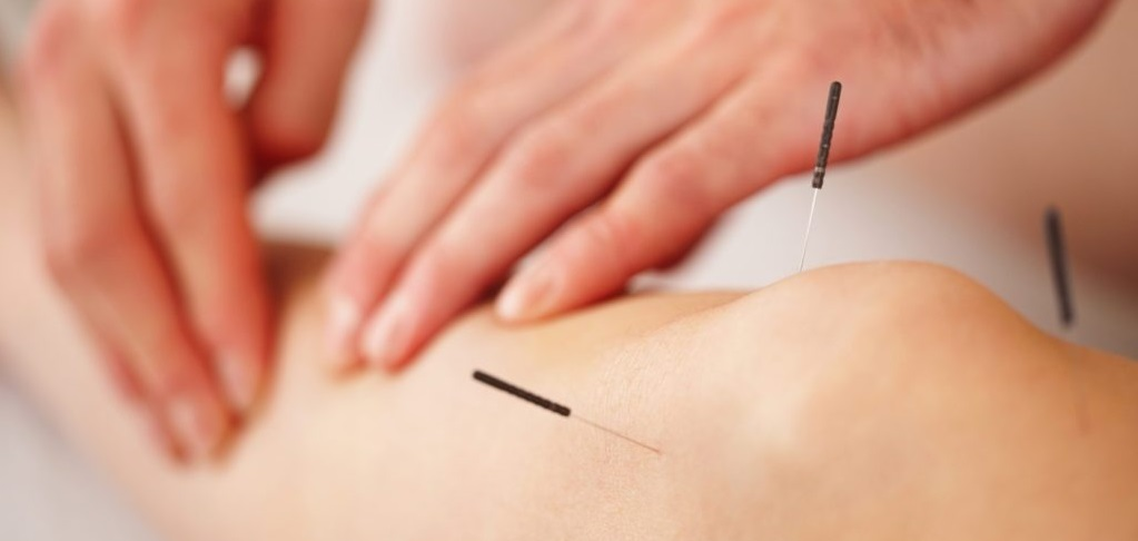tendonitis-acupuncture