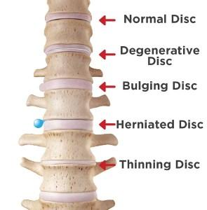 can-a-bulging-disc-heal