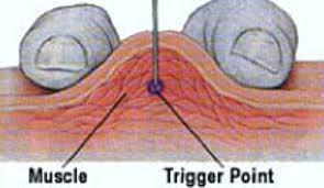 orthopedic-acupuncture-san-diego