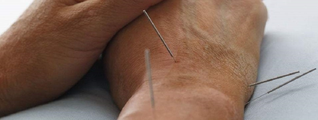 can-acupuncture-help-neuropathy