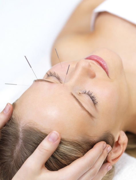 accupuncture for dry eyes