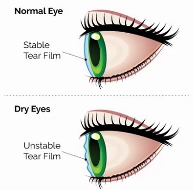acupuncture-dry-eyes