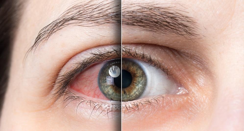 remedies-for-dry-eye
