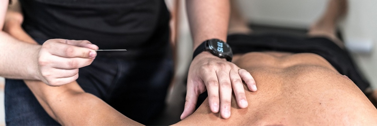acupuncture-for-athletes