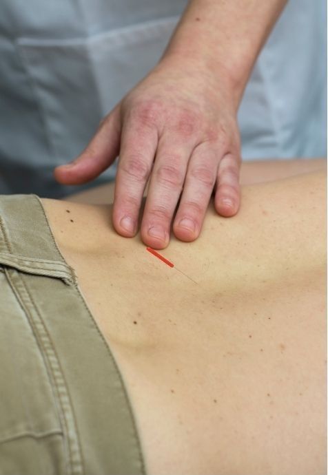is-acupuncture-good-for-athletes