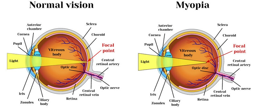 what-causes-myopia