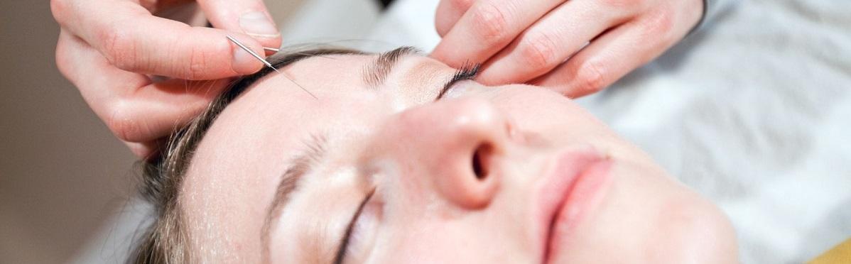 acupuncture-for-stargardt-disease