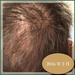 銀クリ治療ー1週間1