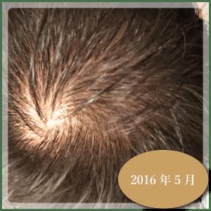 銀クリ治療ー3ヶ月3