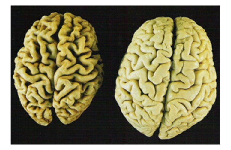 Brain shrinkage happens in dementia and is the root cause for many of the problematic behaviors.