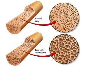 osteoporoticbone15472526_m (1)