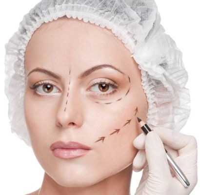 9 Different Facelift Techniques Explained