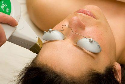 Photofacials vs. Laser Skin Treatments