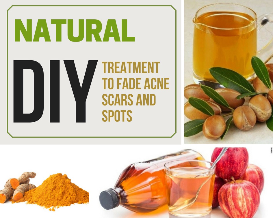 Natural Diy Treatment To Fade Acne Scars And Spots