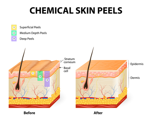 Chemical Skin Peels and Strengths - makeup artists choice blog