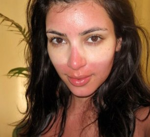 Kim Kardashian sunburnt. How to look good when you feel bad with dry skin or sunburn.