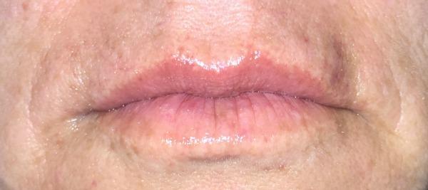 Restylane Silk lip lines