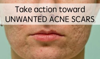 Take Action Against Unwanted Acne Scars