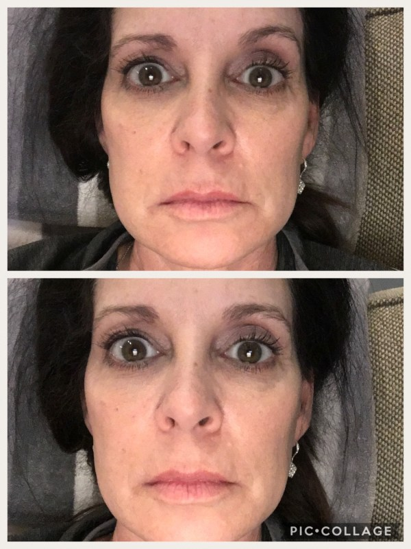 before and after using Juvalips