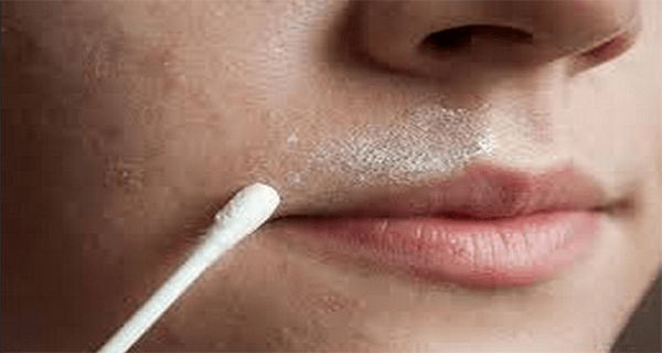 This Natural Recipe Will Make Your Facial Hair Disappear Forever