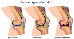 Your Diet Is Causing Inflammation And Arthritis Flare-ups, Here Are 7 Ways To Prevent Them