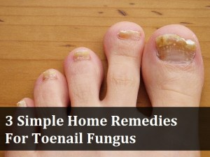 3 Simple Home Remedies for Toenail Fungus