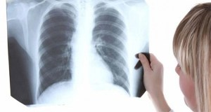 Amazing Discovery: This Vitamin Treats Lung Inflammation within 3 Hours!