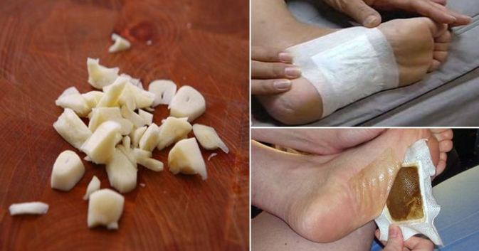 Get Rid of Dangerous Toxins Overnight With These Homemade Detox Foot Pads