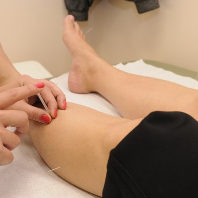 What Are the Benefits of Medical Acupuncture to Your Health?