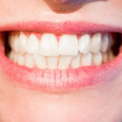Simple Ways to Keep Your Gums Healthy