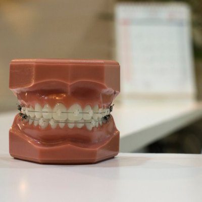 Taking Care of Your Veneers After Installation