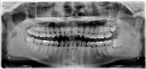 WANTED: Human teeth