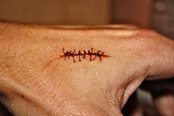 HOW TO – Realistic scar with stitches