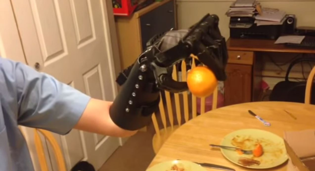 Unboxing My Son's New 3D-Printed Hand