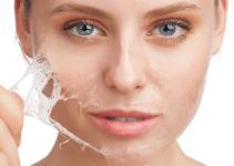 cara mengatasi kulit kering