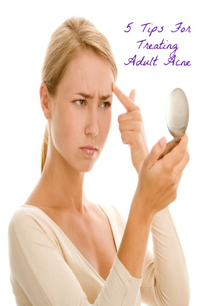 5 Tips For Treating Adult Acne Pin