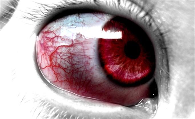 Gözü Kaynak Alması Ne Zaman Geçer?