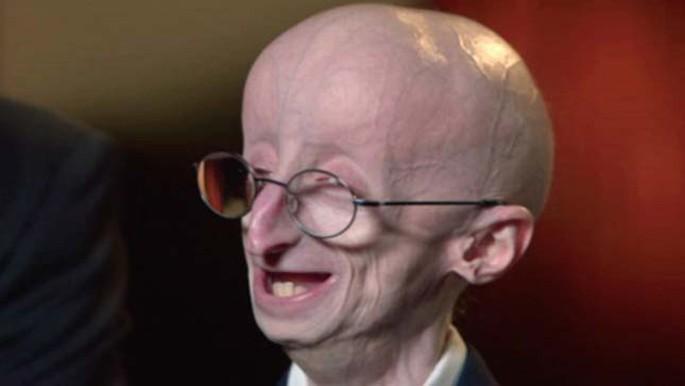 Erken Yaşlanma Nedir? Progeria Hastalığına Sebep Olan Etkenler ve Belirtiler