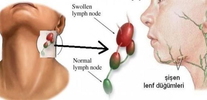 Lenf Kanseri Lenfoma Hastalığı Nedir? Belirtileri Neler ve Tedavi Yöntemleri Neler?