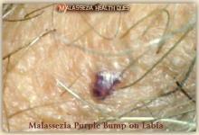 Malassezia Bump on Labia 3G -MQ