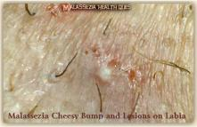 Bumps and Lesions on Labia 2G-MQ