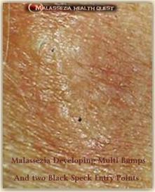 Malassezia Bumps with Black Specks 1-MQ