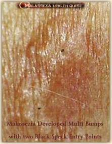 Malassezia Bumps with Black Specks 2-MQ