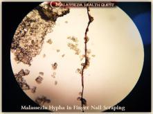 Malassezia in Finger Nail Scrapings1-MQ