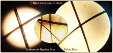 Pubic Hair - MQ