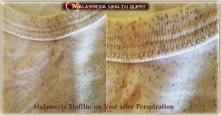 Malassezia Biofilm after Perspiration1-MQ