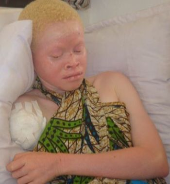 A victim of attacks on albinos in Tanzania