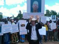 albinism Malawi