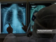 Healthcare worker examining the x-ray result of a Covid-19 patient at the Intensive Care Unit (ICU) of the Kuala Lumpur Hospital. PIX: MOHD ADZLAN / MalaysiaGazette / 04 JUNE 2021 Covid-19 cases
