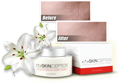 Stretch Mark Therapy Before and After Results